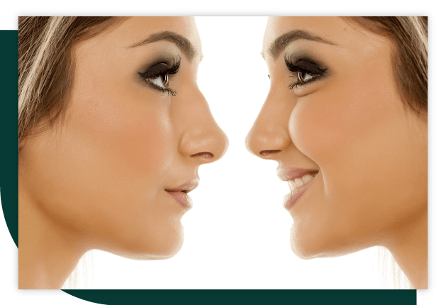 Rinoplastie (corectia nasului)